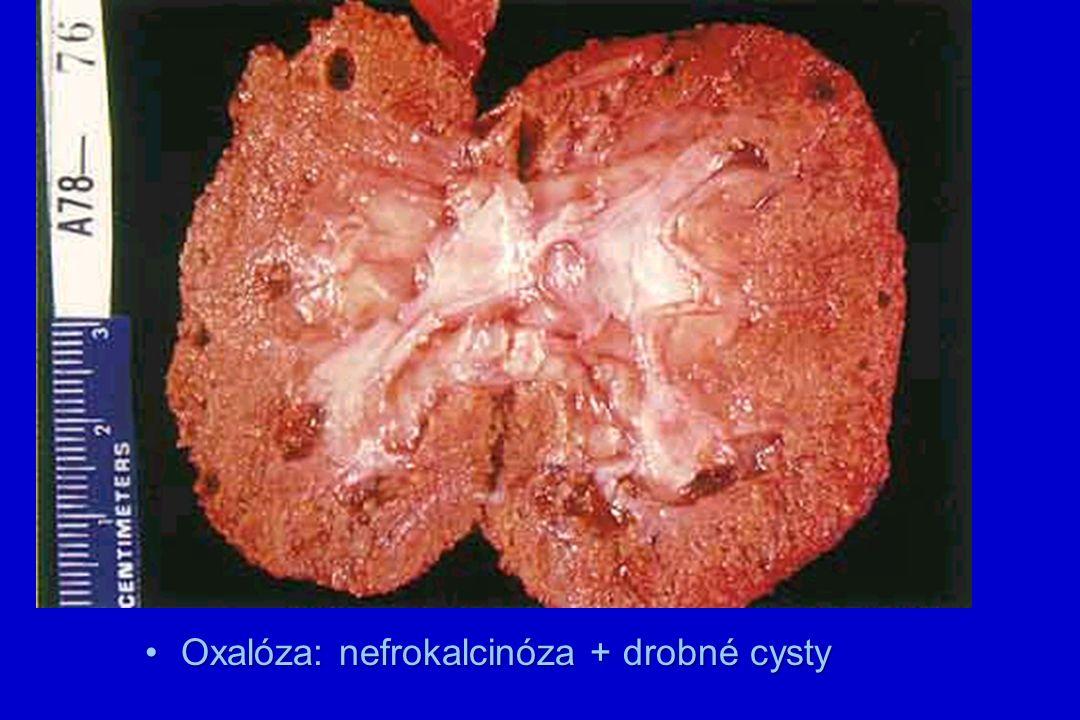 Oxalóza: nefrokalcinóza + drobné cystyOxalóza: nefrokalcinóza + drobné cysty