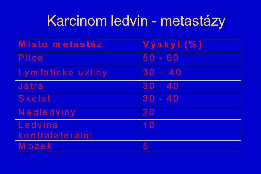 Karcinom ledvin - metastázy