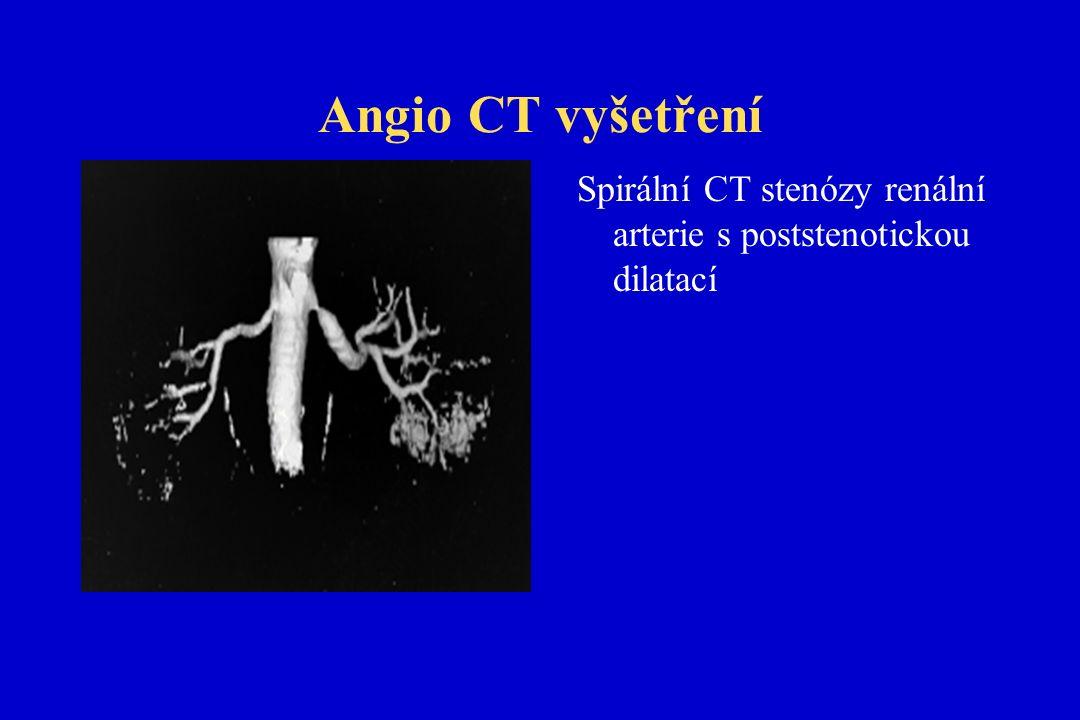 Angio CT vyšetření Spirální CT stenózy renální arterie s poststenotickou dilatací