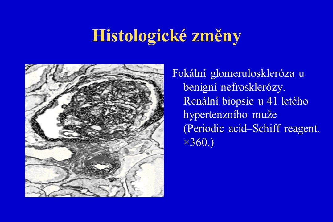 Histologické změny Fokální glomeruloskleróza u benigní nefrosklerózy.