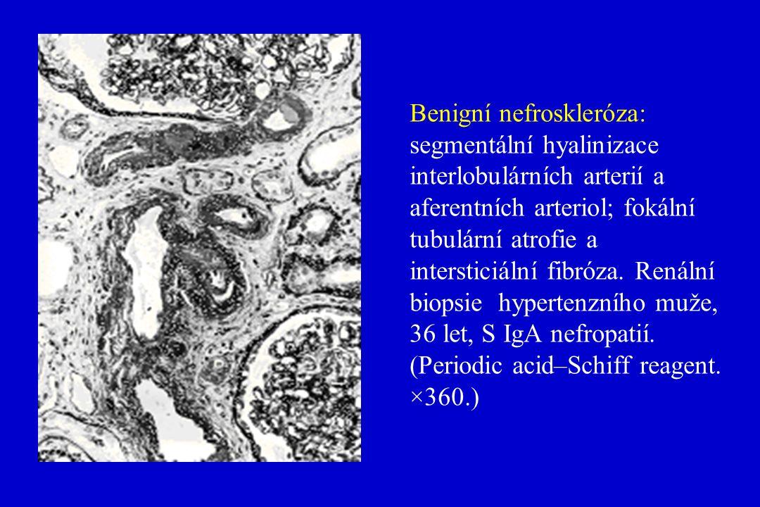 Benigní nefroskleróza: segmentální hyalinizace interlobulárních arterií a aferentních arteriol; fokální tubulární atrofie a intersticiální fibróza.