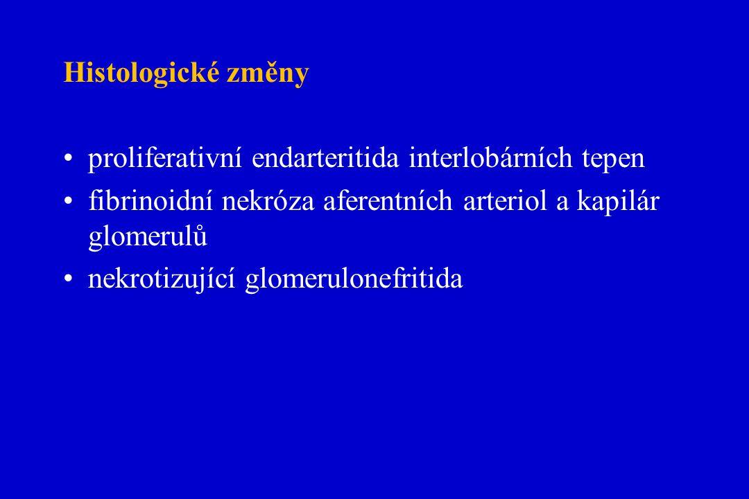 Histologické změny proliferativní endarteritida interlobárních tepen fibrinoidní nekróza aferentních arteriol a kapilár glomerulů nekrotizující glomerulonefritida