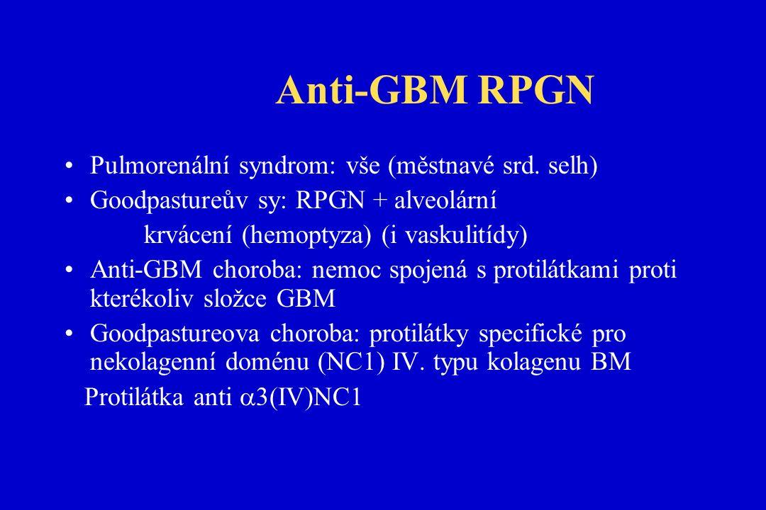 Anti-GBM RPGN Pulmorenální syndrom: vše (městnavé srd.