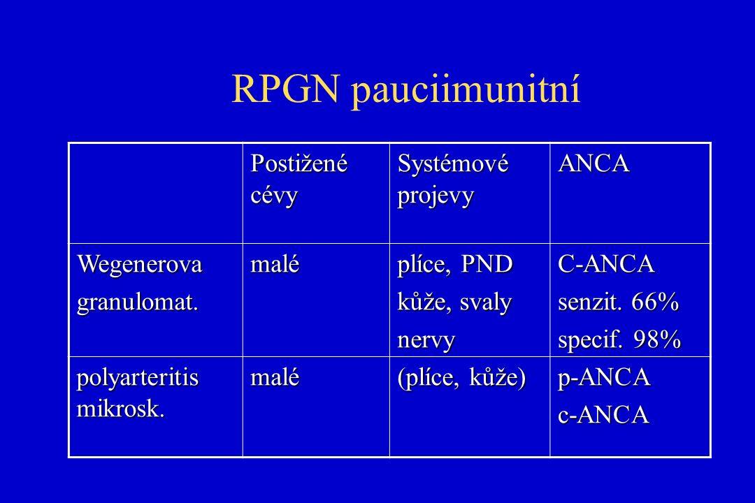 RPGN pauciimunitní Postižené cévy Systémové projevy ANCA Wegenerovagranulomat.malé plíce, PND kůže, svaly nervyC-ANCA senzit.