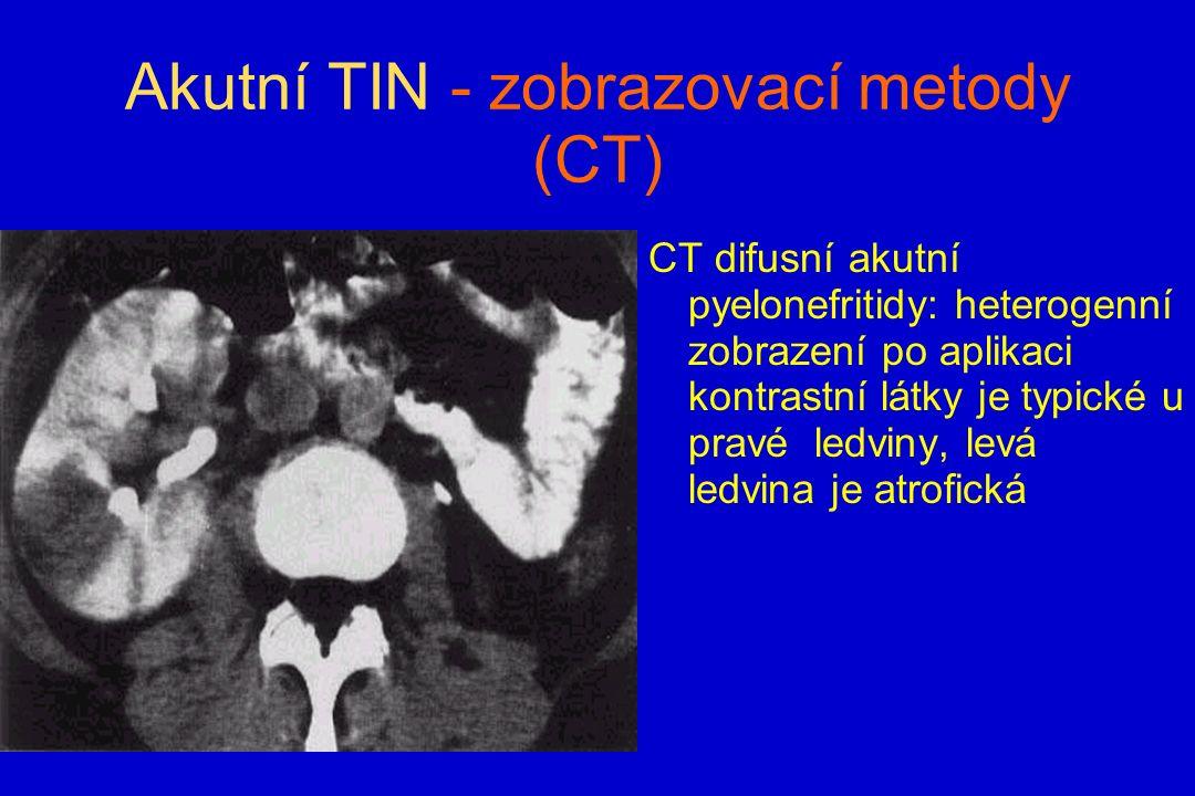 Akutní TIN - zobrazovací metody (CT) CT difusní akutní pyelonefritidy: heterogenní zobrazení po aplikaci kontrastní látky je typické u pravé ledviny, levá ledvina je atrofická