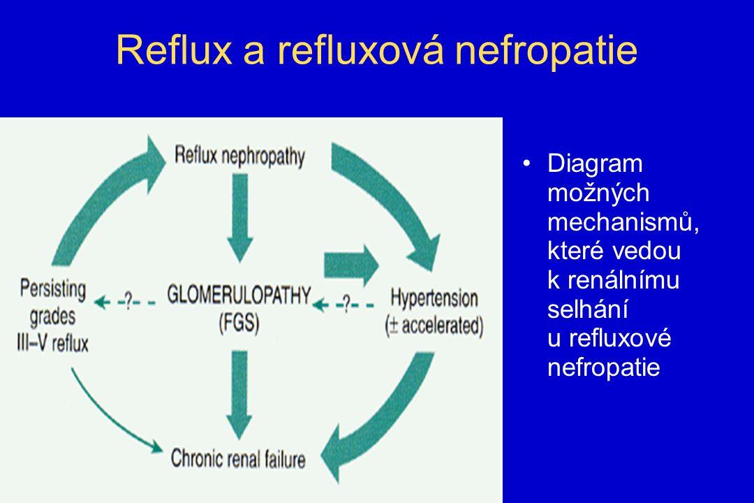 Reflux a refluxová nefropatie Diagram možných mechanismů, které vedou k renálnímu selhání u refluxové nefropatie