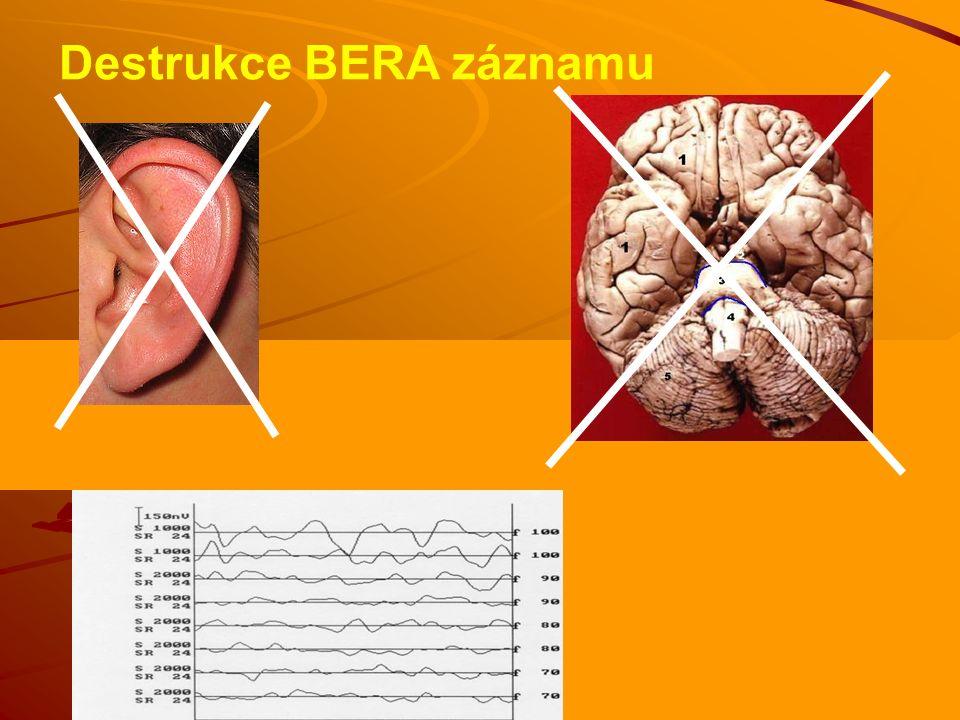 Žena 40 let; neurinom vpravo Dívka 9 let; nitroušní hluchota vpravo