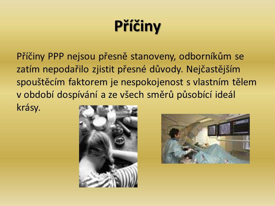 Psychické a fyzické problémy PPP ovšem nepostihují jen psychiku.
