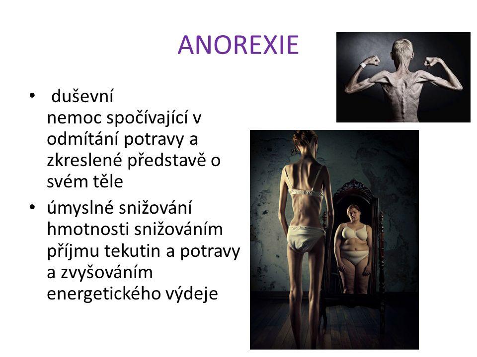 ANOREXIE duševní nemoc spočívající v odmítání potravy a zkreslené představě o svém těle úmyslné snižování hmotnosti snižováním příjmu tekutin a potravy a zvyšováním energetického výdeje