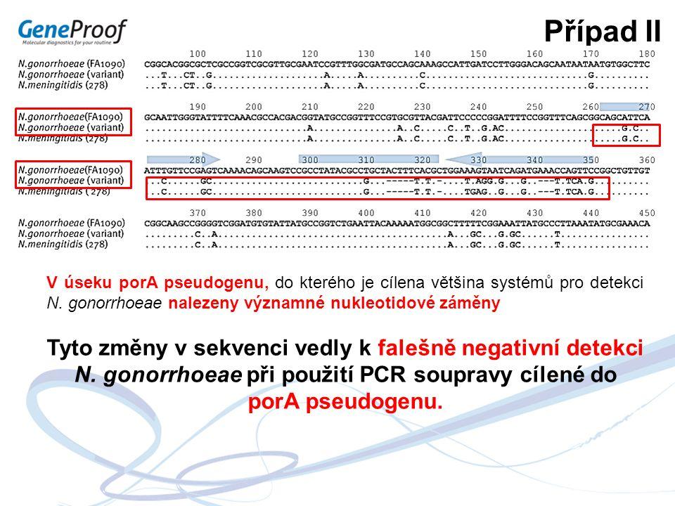 Případ II V úseku porA pseudogenu, do kterého je cílena většina systémů pro detekci N. gonorrhoeae nalezeny významné nukleotidové záměny Tyto změny v