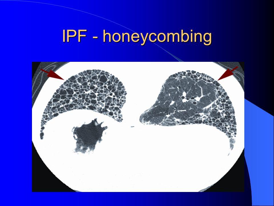IPF - honeycombing