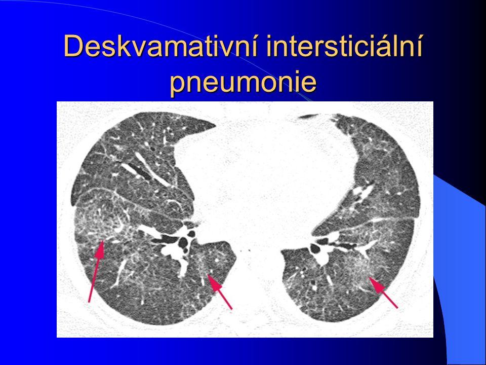Deskvamativní intersticiální pneumonie
