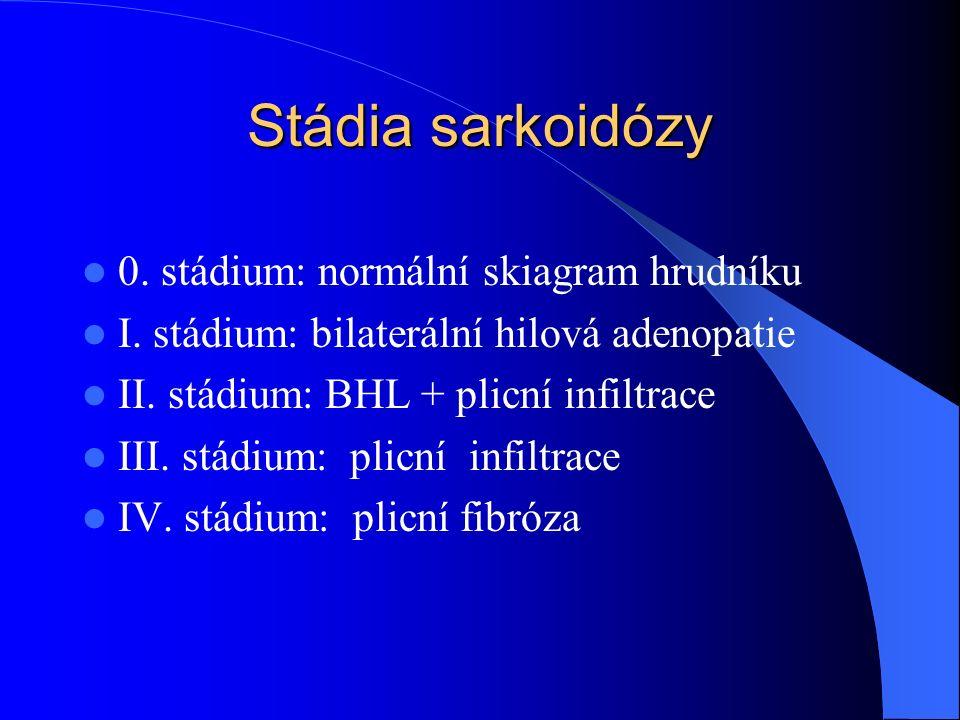 Stádia sarkoidózy 0.stádium: normální skiagram hrudníku I.