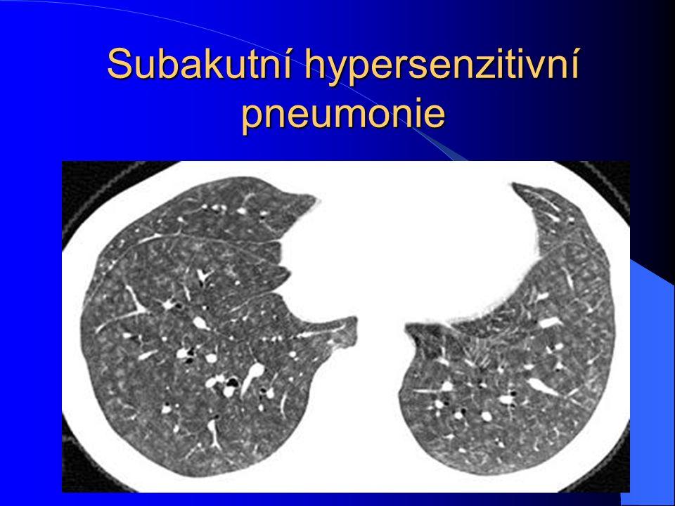 Subakutní hypersenzitivní pneumonie