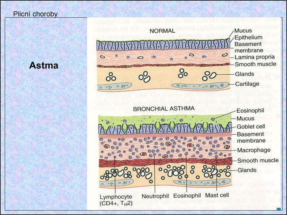 Astma Plicní choroby