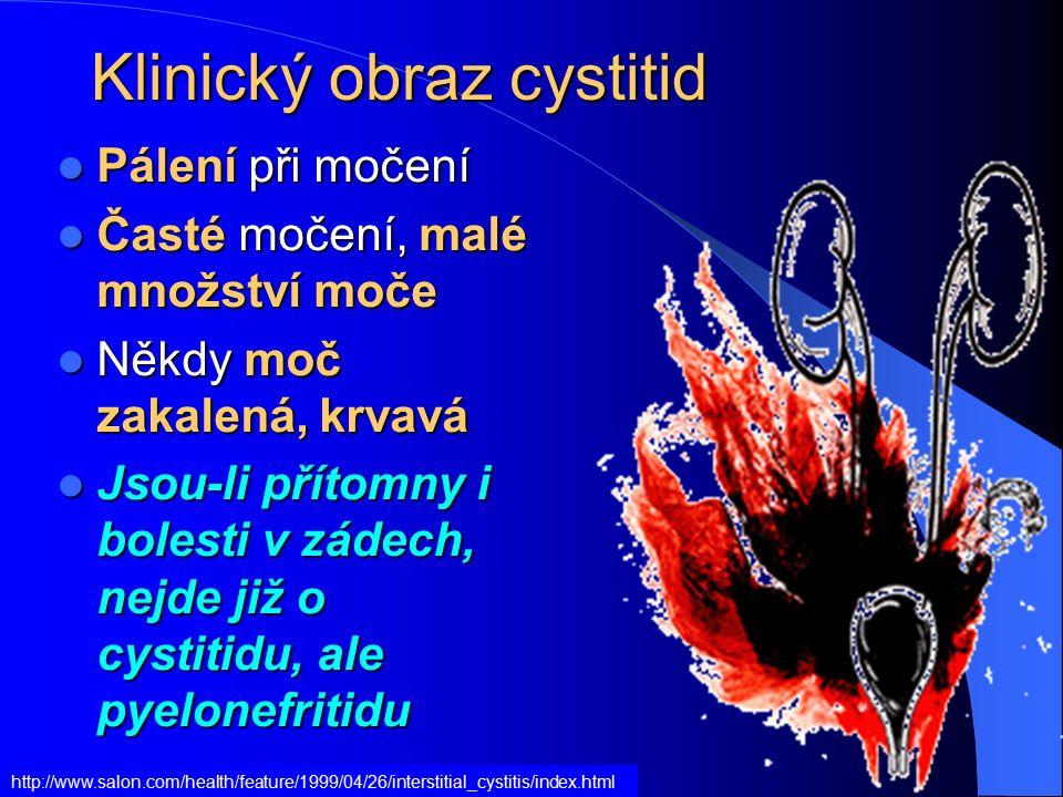 Klinický obraz cystitid Pálení při močení Pálení při močení Časté močení, malé množství moče Časté močení, malé množství moče Někdy moč zakalená, krvavá Někdy moč zakalená, krvavá Jsou-li přítomny i bolesti v zádech, nejde již o cystitidu, ale pyelonefritidu Jsou-li přítomny i bolesti v zádech, nejde již o cystitidu, ale pyelonefritidu http://www.salon.com/health/feature/1999/04/26/interstitial_cystitis/index.html