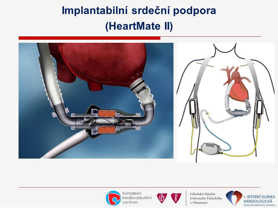 Implantabilní srdeční podpora (HeartMate II)