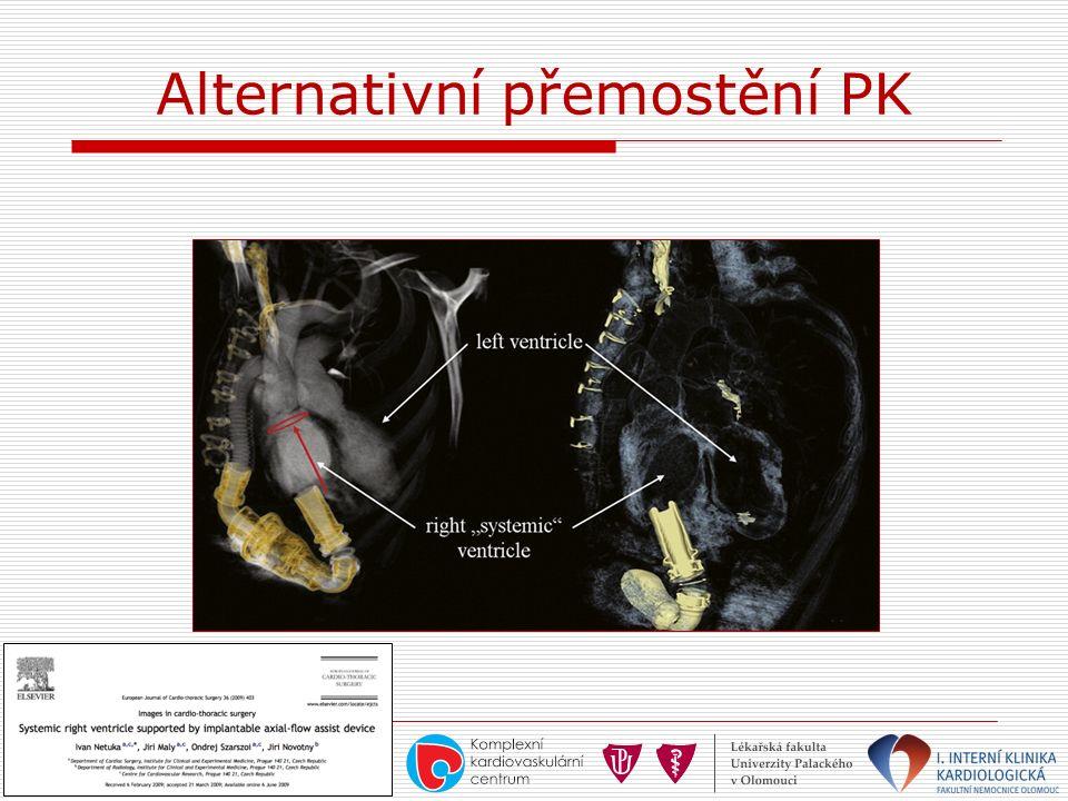 Alternativní přemostění PK