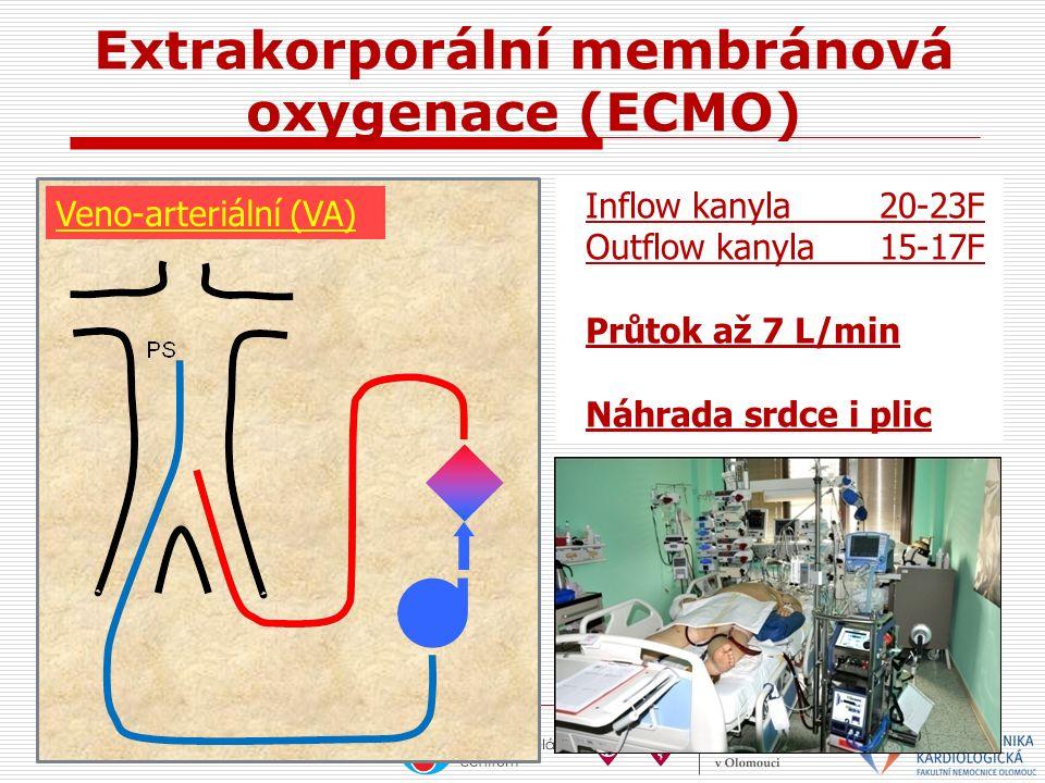 Extrakorporální membránová oxygenace (ECMO) Veno-arteriální (VA) Inflow kanyla20-23F Outflow kanyla15-17F Průtok až 7 L/min Náhrada srdce i plic