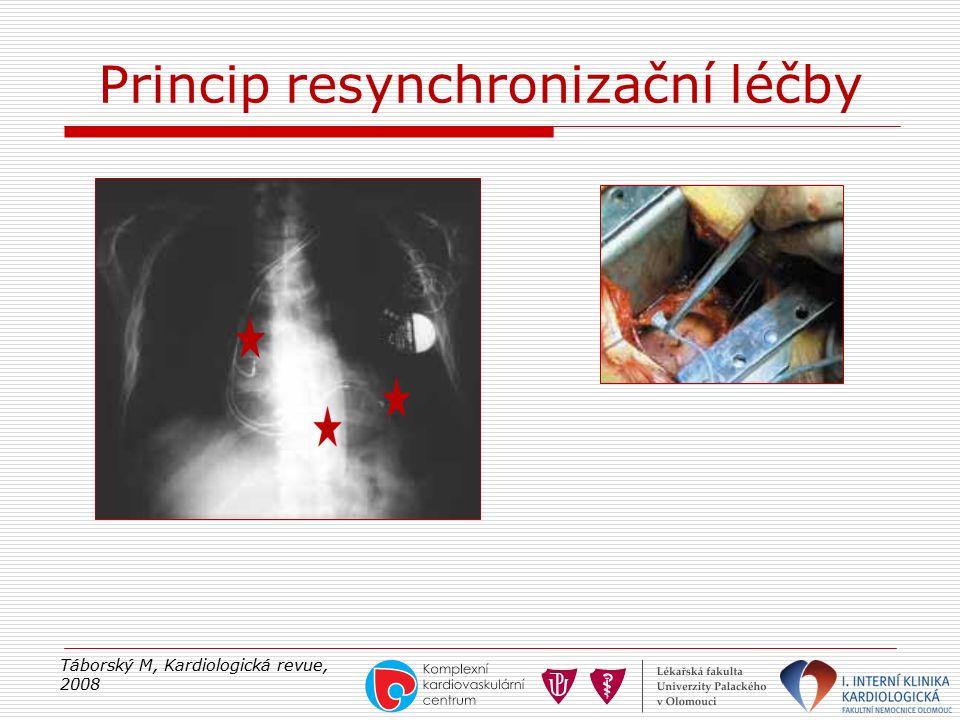 Princip resynchronizační léčby Táborský M, Kardiologická revue, 2008