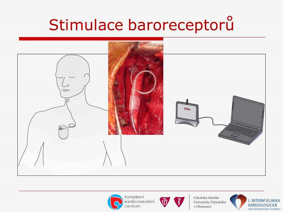 Stimulace baroreceptorů