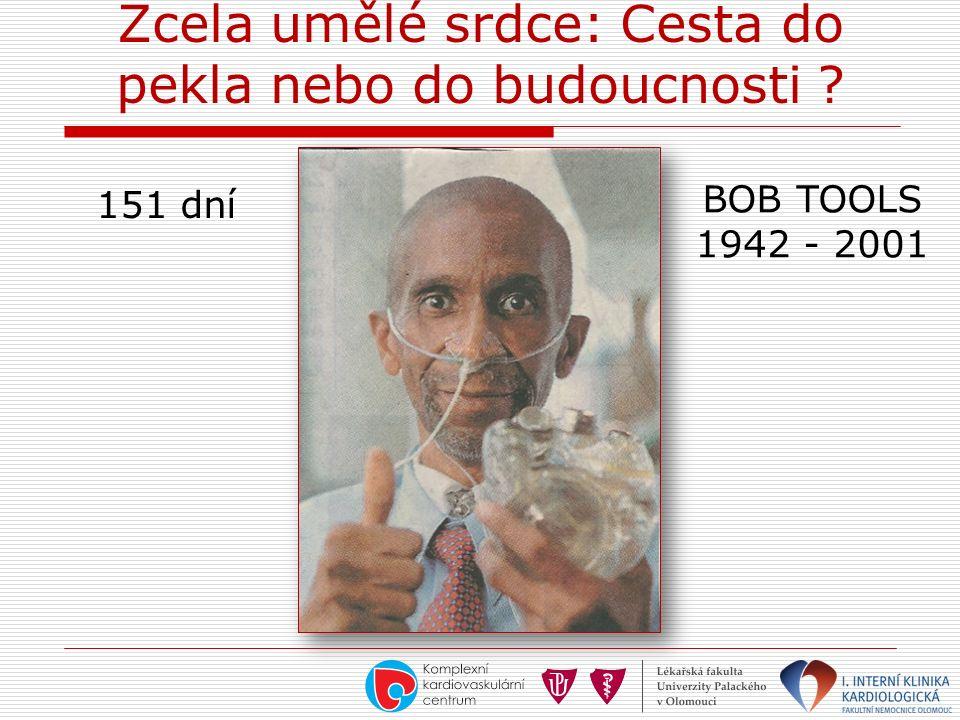Zcela umělé srdce: Cesta do pekla nebo do budoucnosti ? BOB TOOLS 1942 - 2001 151 dní