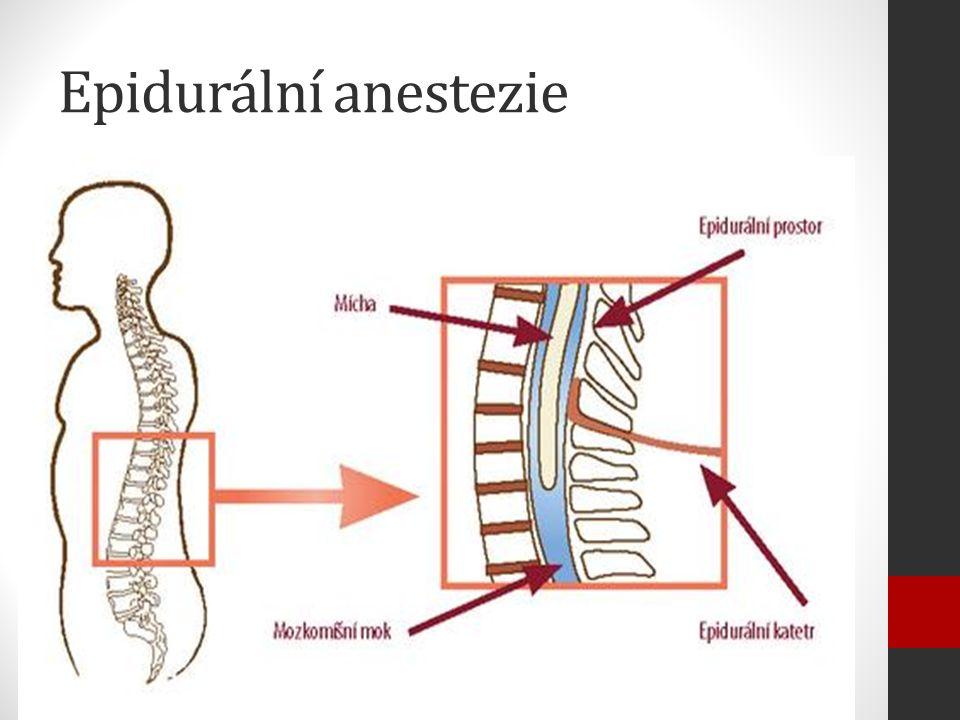 Epidurální anestezie