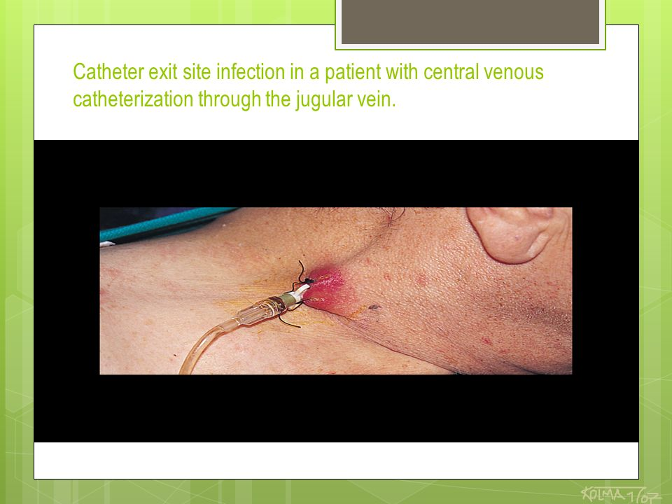 Catheter exit site infection in a patient with central venous catheterization through the jugular vein.
