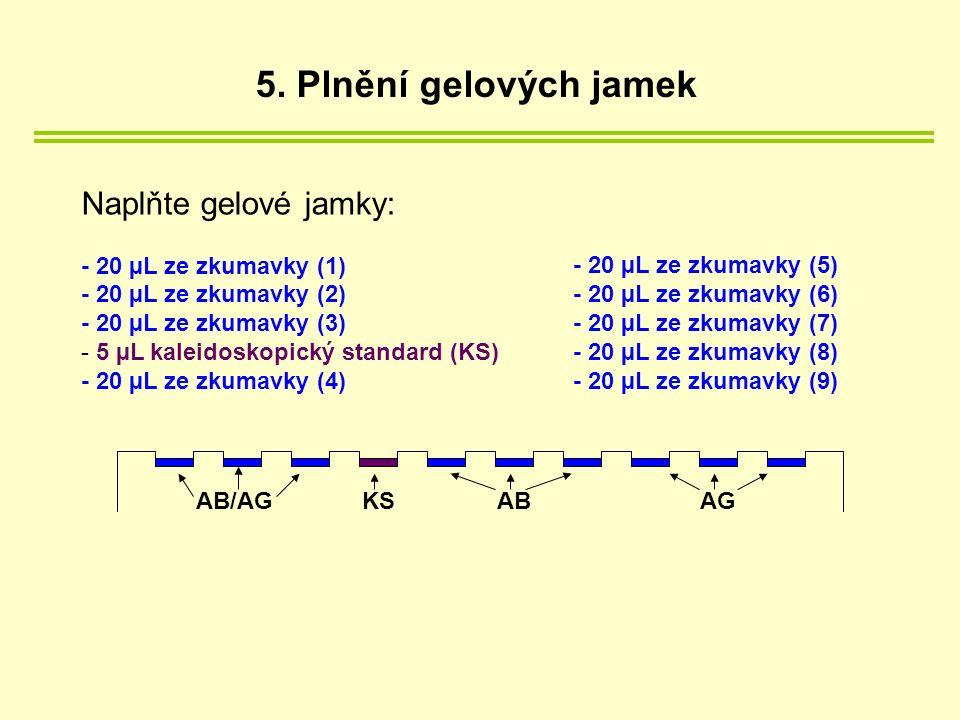 Naplňte gelové jamky: - 20 µL ze zkumavky (1) - 20 µL ze zkumavky (2) - 20 µL ze zkumavky (3) - 5 µL kaleidoskopický standard (KS) - 20 µL ze zkumavky (4) - 20 µL ze zkumavky (5) - 20 µL ze zkumavky (6) - 20 µL ze zkumavky (7) - 20 µL ze zkumavky (8) - 20 µL ze zkumavky (9) ABAGAB/AGKS 5.