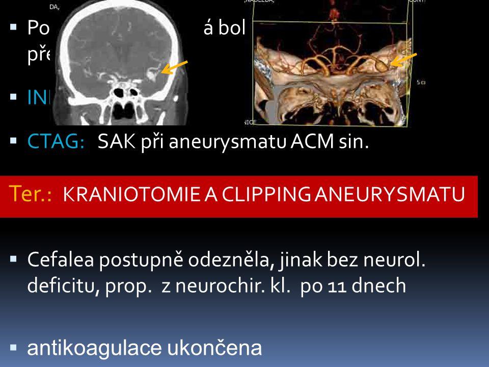  Po 5.M náhlá prudká bolest hlavy, zvláště při překlonu  INR: 2,2  CTAG: SAK při aneurysmatu ACM sin.