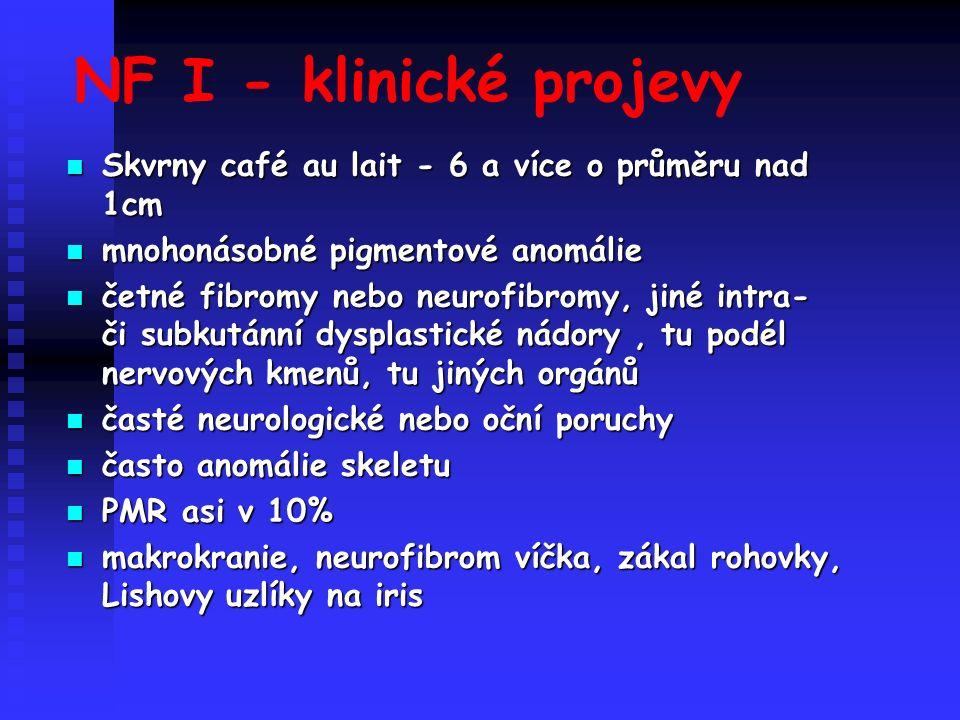 NF I - klinické projevy Skvrny café au lait - 6 a více o průměru nad 1cm Skvrny café au lait - 6 a více o průměru nad 1cm mnohonásobné pigmentové anomálie mnohonásobné pigmentové anomálie četné fibromy nebo neurofibromy, jiné intra- či subkutánní dysplastické nádory, tu podél nervových kmenů, tu jiných orgánů četné fibromy nebo neurofibromy, jiné intra- či subkutánní dysplastické nádory, tu podél nervových kmenů, tu jiných orgánů časté neurologické nebo oční poruchy časté neurologické nebo oční poruchy často anomálie skeletu často anomálie skeletu PMR asi v 10% PMR asi v 10% makrokranie, neurofibrom víčka, zákal rohovky, Lishovy uzlíky na iris makrokranie, neurofibrom víčka, zákal rohovky, Lishovy uzlíky na iris