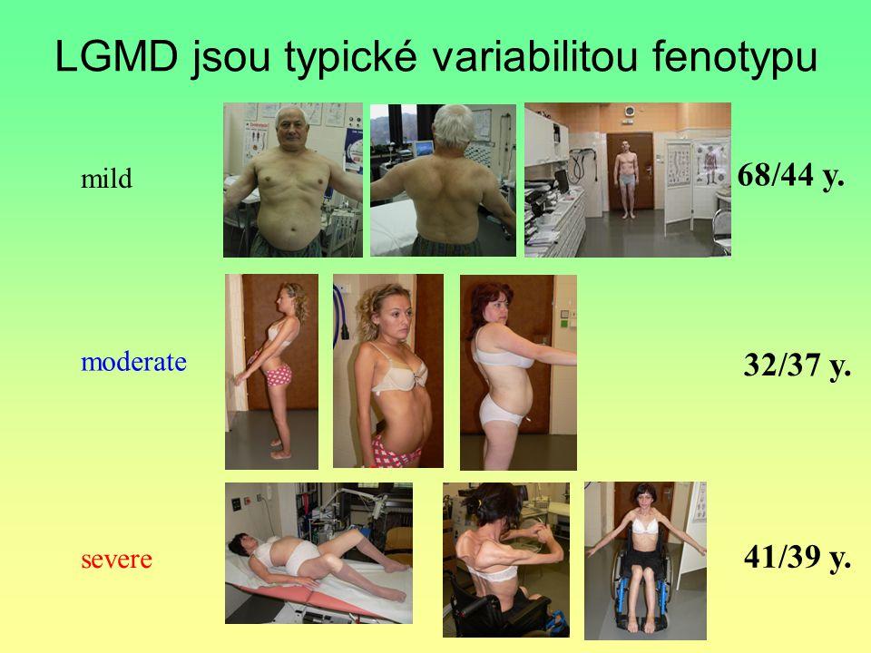 LGMD jsou typické variabilitou fenotypu mild moderate severe 68/44 y. 32/37 y. 41/39 y.