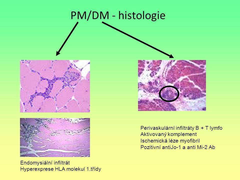 PM/DM - histologie Perivaskulární infiltráty B + T lymfo Aktivovaný komplement Ischemická léze myofibril Pozitivní antiJo-1 a anti Mi-2 Ab Endomysiáln
