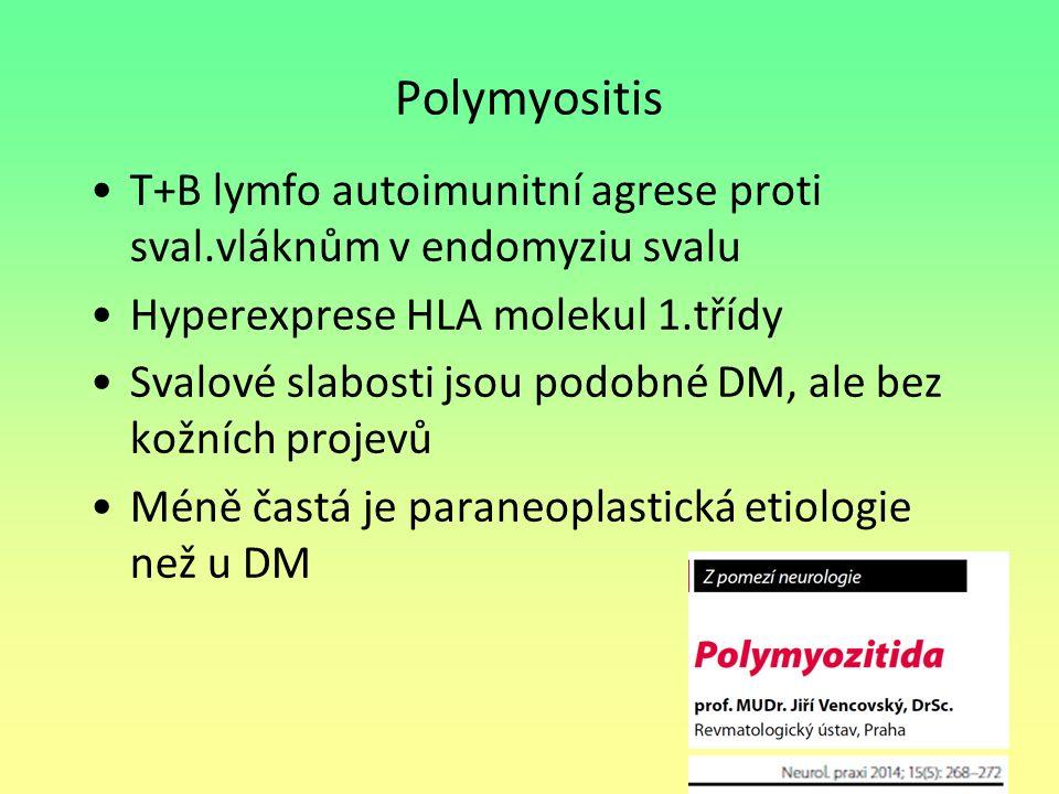 Polymyositis T+B lymfo autoimunitní agrese proti sval.vláknům v endomyziu svalu Hyperexprese HLA molekul 1.třídy Svalové slabosti jsou podobné DM, ale