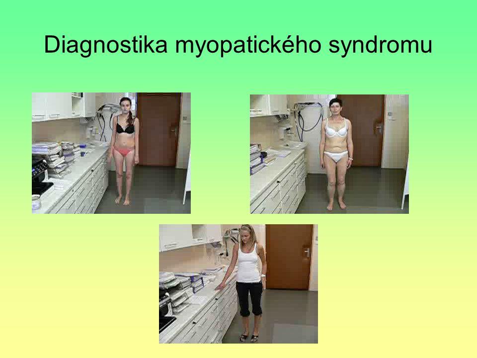 Diagnostika myopatického syndromu