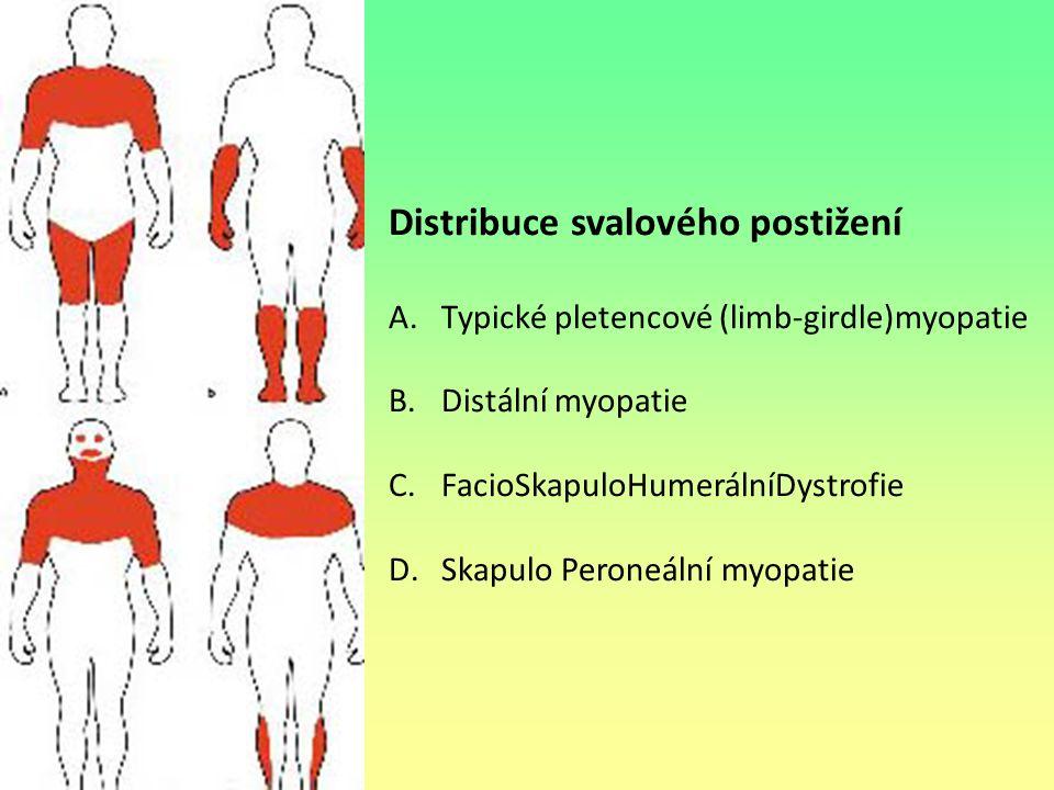 Distribuce svalového postižení A.Typické pletencové (limb-girdle)myopatie B.Distální myopatie C.FacioSkapuloHumerálníDystrofie D.Skapulo Peroneální my