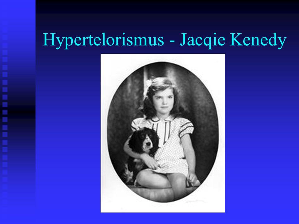 Hypertelorismus - Jacqie Kenedy