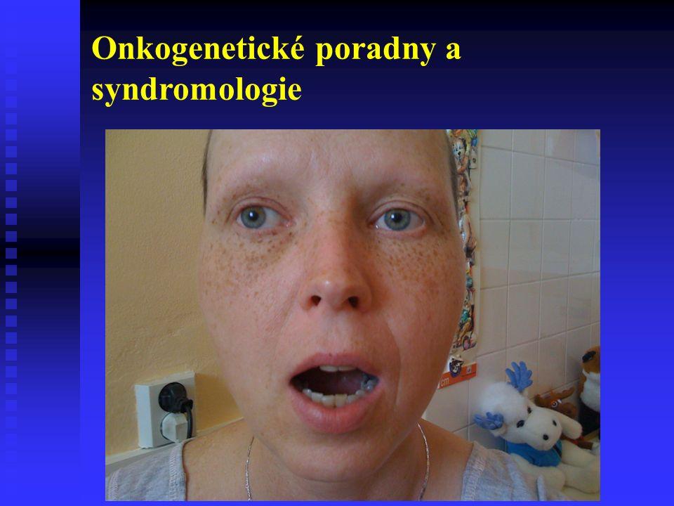 Onkogenetické poradny a syndromologie