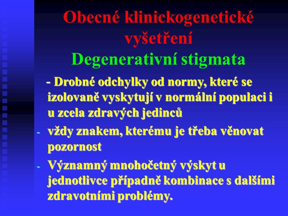 Degenerativní stigmata  opičí rýha  nadpočetné prsty  srostlé prsty  hypertrichosa  pterygia  hypospadie