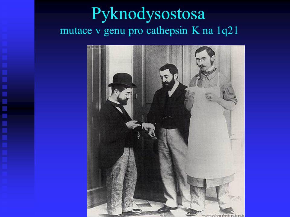 Pyknodysostosa mutace v genu pro cathepsin K na 1q21