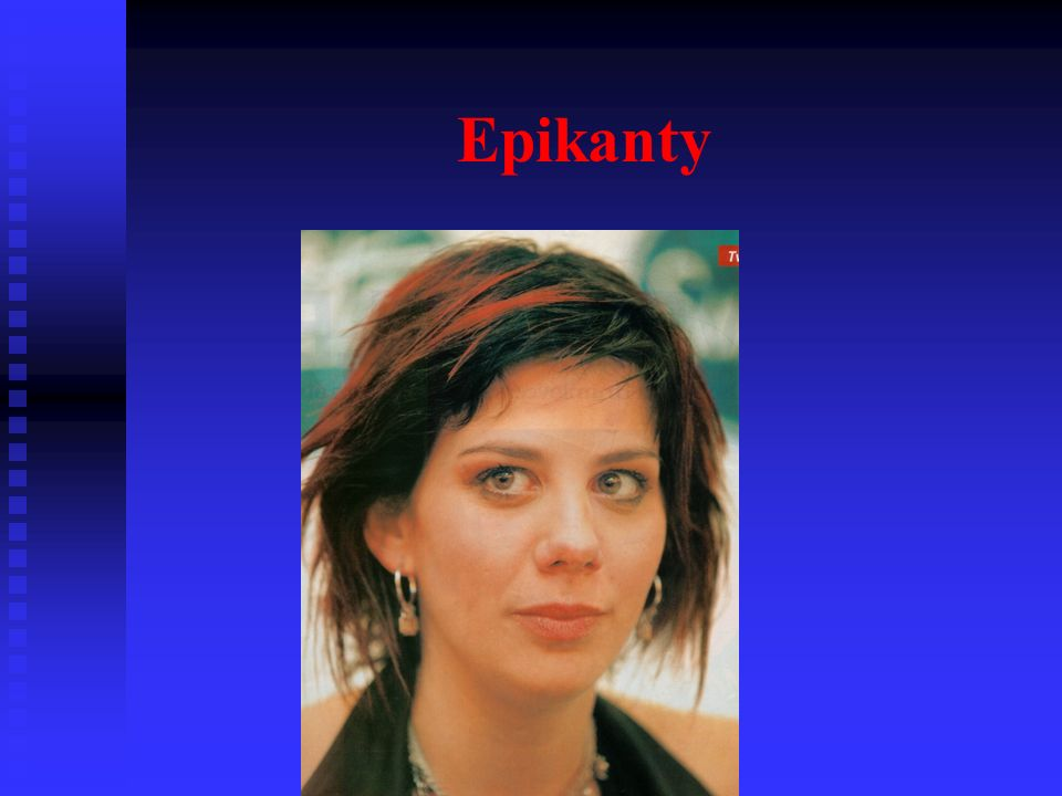 Hypertelorismus + epikanty