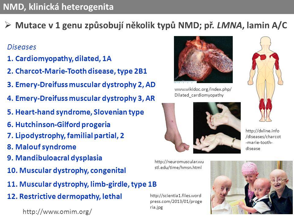NMD, klinická heterogenita  Mutace v 1 genu způsobují několik typů NMD; př.