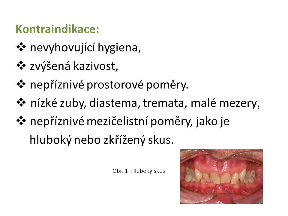 Kontraindikace:  nevyhovující hygiena,  zvýšená kazivost,  nepříznivé prostorové poměry.  nízké zuby, diastema, tremata, malé mezery,  nepříznivé