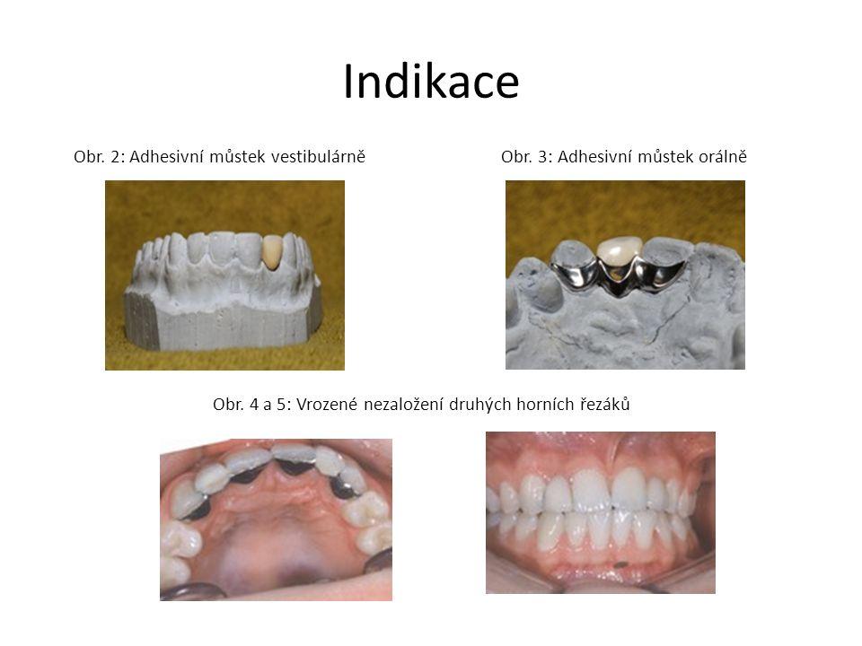 Indikace Obr. 2: Adhesivní můstek vestibulárně Obr. 3: Adhesivní můstek orálně Obr. 4 a 5: Vrozené nezaložení druhých horních řezáků