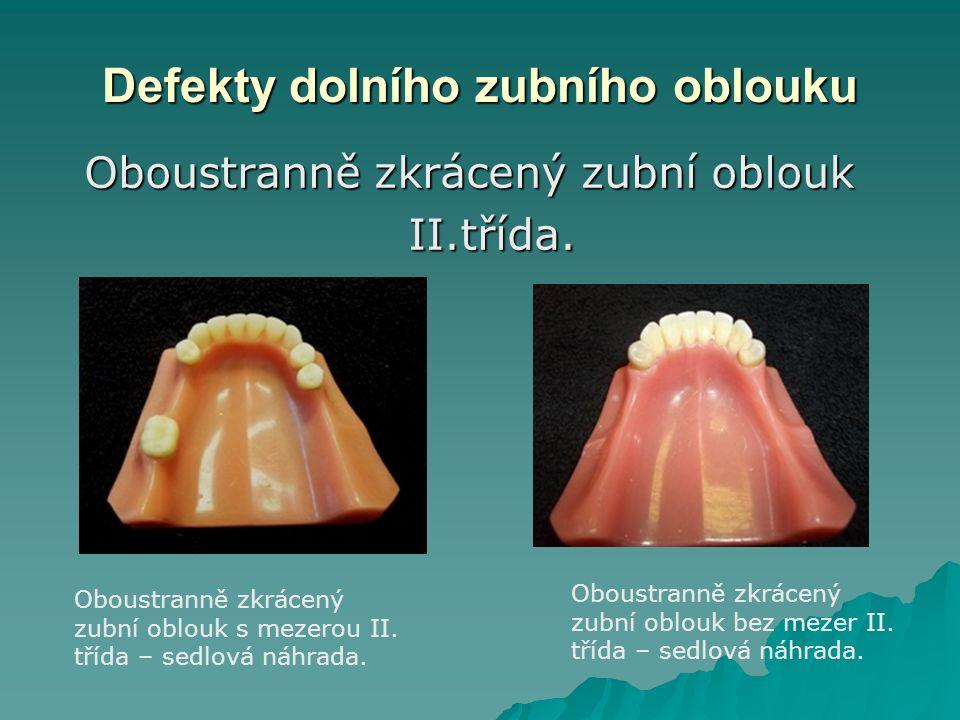 Defekty dolního zubního oblouku Oboustranně zkrácený zubní oblouk Oboustranně zkrácený zubní obloukII.třída.
