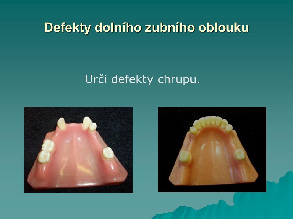 Defekty horního zubního oblouku Snímatelný můstek I. třídaSedlová náhrada II. třída