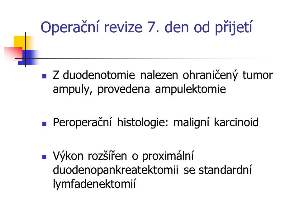 Operační revize 7. den od přijetí Z duodenotomie nalezen ohraničený tumor ampuly, provedena ampulektomie Peroperační histologie: maligní karcinoid Výk