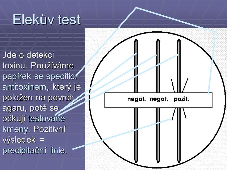 Elekův test Jde o detekci toxinu. Používáme papírek se specific. antitoxinem, který je položen na povrch agaru, poté se očkují testované kmeny. Poziti