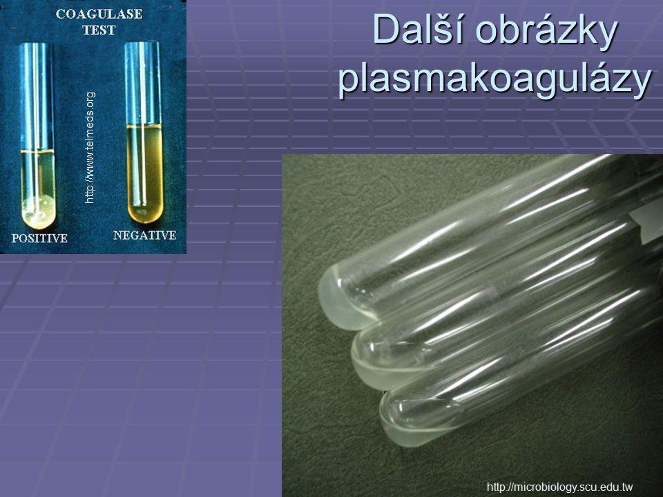 Další obrázky plasmakoagulázy http://microbiology.scu.edu.tw http://www.telmeds.org