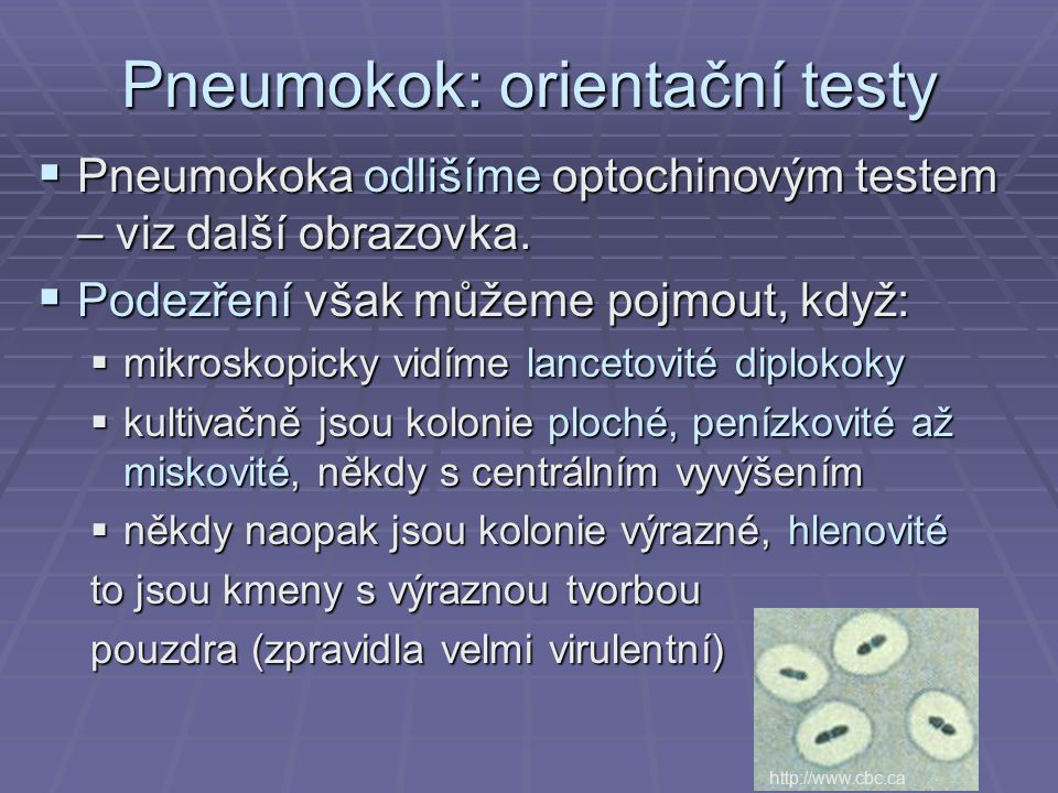  Pneumokoka odlišíme optochinovým testem – viz další obrazovka.